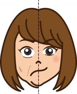 顔の歪み 原因 矯正