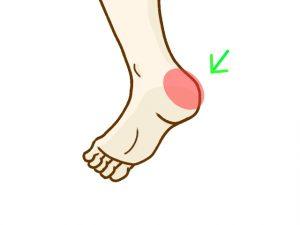足首を細くする方法