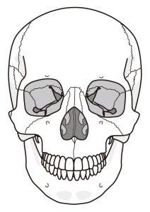 頬骨を引っ込める方法 小顔矯正